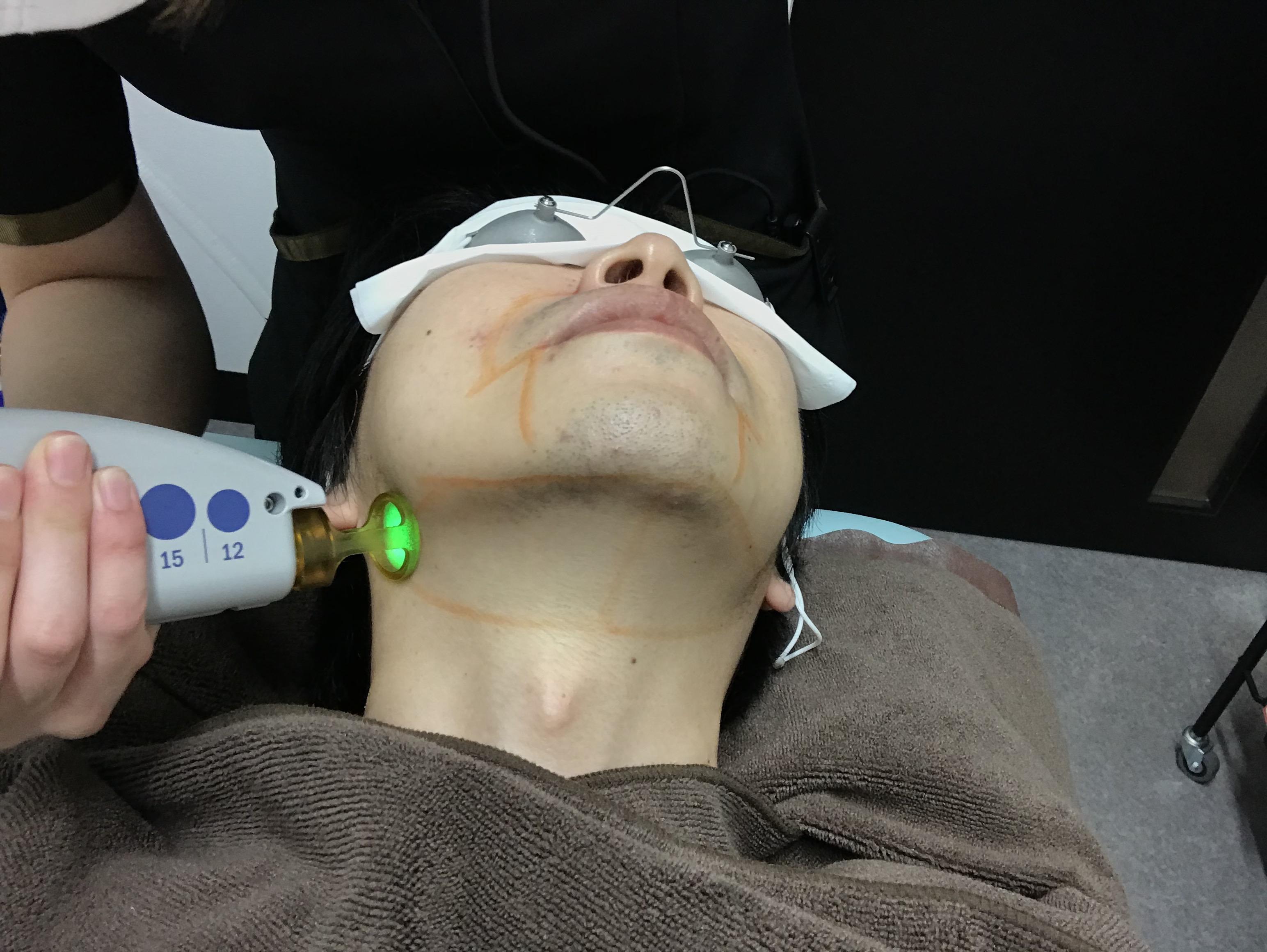 ゴリラクリニック|ヒゲ脱毛の治療の間隔はどのくらい開けるべき?何回目から効果が現れるの?