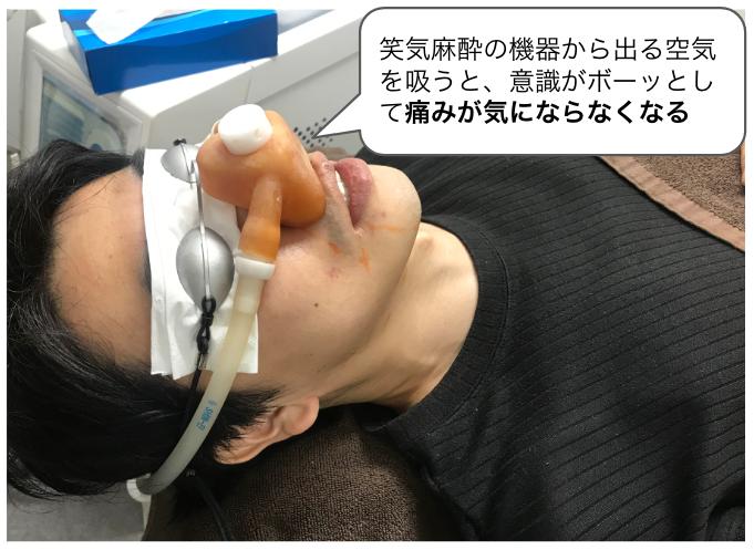 ゴリラクリニックのヒゲ脱毛|医療レーザーの痛みはどのくらい?痛みの強さや麻酔の効果など徹底解説