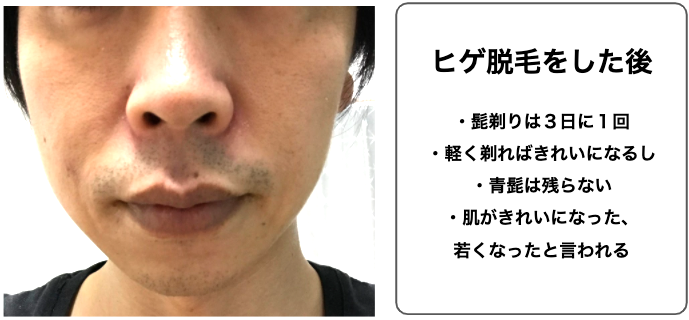 【体験談】ゴリラクリニックのヒゲ脱毛に1年間(6回)行った感想と評価
