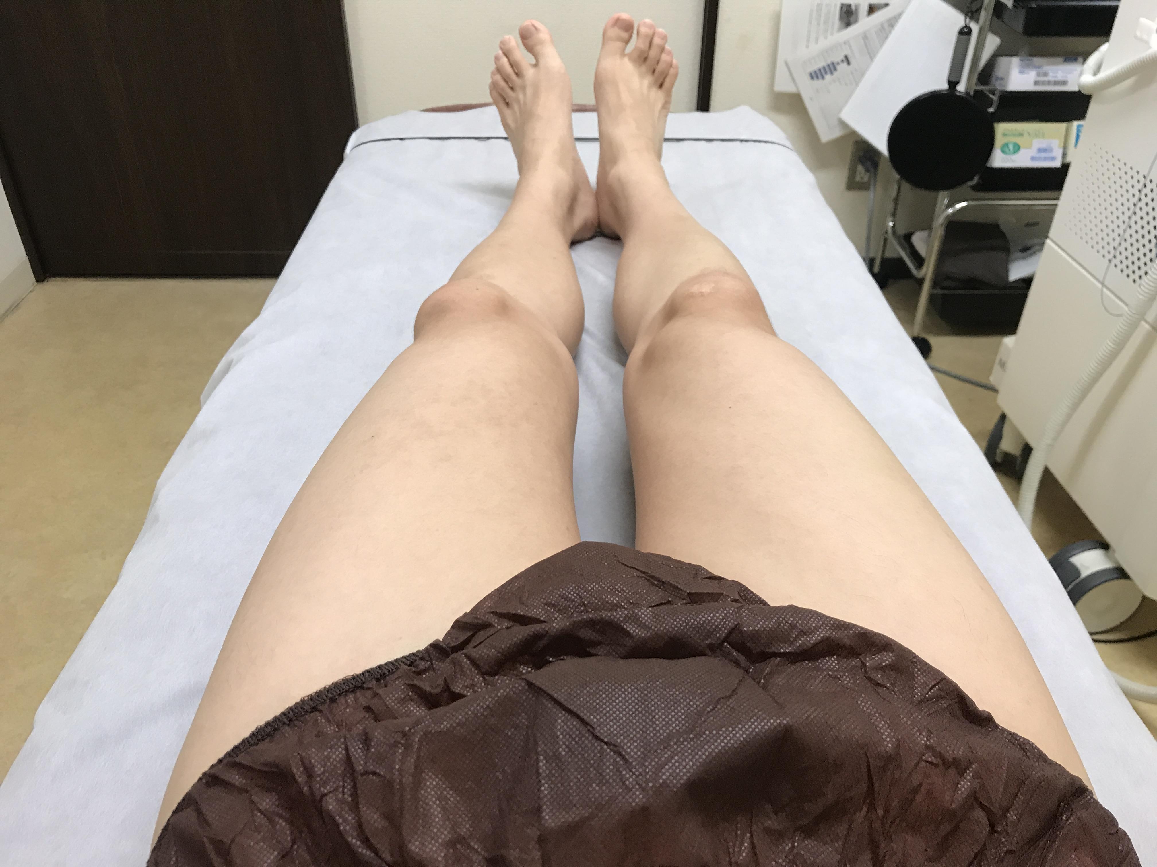 ゴリラクリニックでスネ毛、モモ毛、足指の毛を脱毛してみた!痛みや効果についてレポート!
